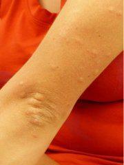 alergická reakcia na potravinovú alergiu