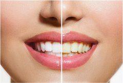 ako odstraniť zubný povlak