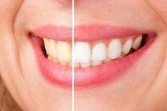 prírodné domáce bielenie zubov