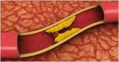 zlý cholesterol v cievách