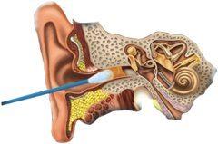 zle čistenie mazu z uší