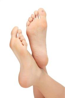 odstraňovanie mozoľov na nohách