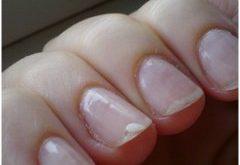 ako liečiť štiepenie nechtov