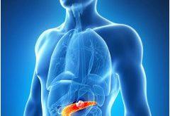 pankreas príznaky choroby pankreasu a liečba