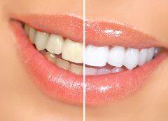bielenie zubov pomocou bieliacích pásikov