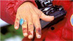 ošetrovanie drobných omrzlín a sčernané prsty
