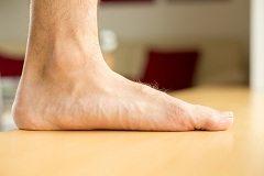 ako na plochú nohu