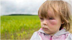 ako ošetriť dieťa po poštípaní od hmyzu