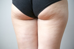 celulitída na zadku