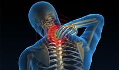 návod ako precvičovať krčnú chrbticu