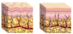 koža s a bez celulitídy