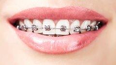 fixny zubny strojcek