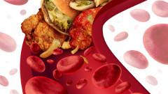 vysoký cholesterol v krvi