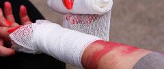 Ako poskytnúť prvú pomoc pri krvácaní