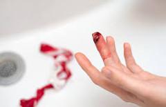 prvá pomoc pri porezanom prste