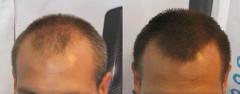 vypádavanie vlasov u mužov