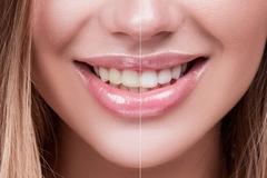 bielenie zubov pomocou bielaceho prášku